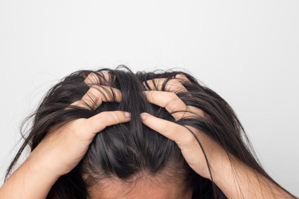 Qué es la tricotilomanía: causas y tratamiento