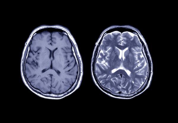 Qué es la neurociencia cognitiva y qué estudia - Técnicas y métodos de estudio de la neurociencia cognitiva
