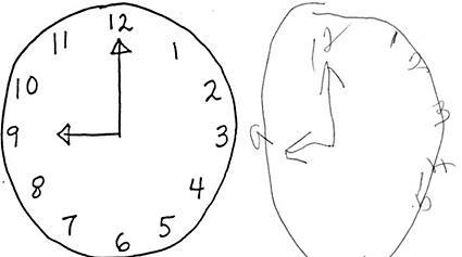 ¿Qué son los test gráficos psicológicos? - Test del reloj