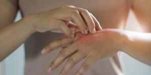 Dermatilomanía: qué es, causas, síntomas y tratamiento
