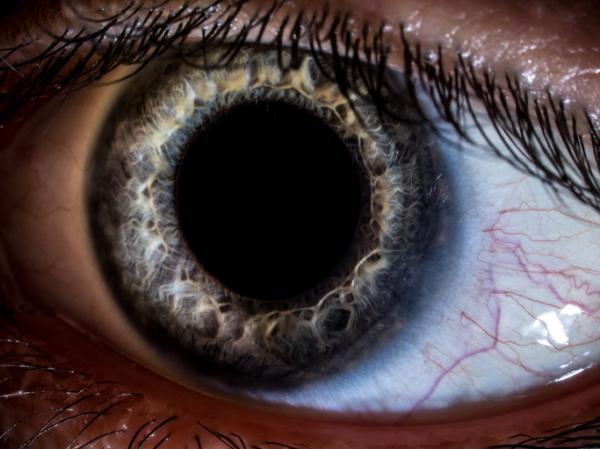 Anomalías de la Visión - Psicología básica - Anomalias de la Visión: : principales enfermedades del ojo