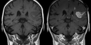 Isquemia cerebral: qué es, causas, síntomas, consecuencias y tratamiento