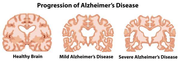 Demencia: qué es, tipos, síntomas y causas - Enfermedad de Alzheimer