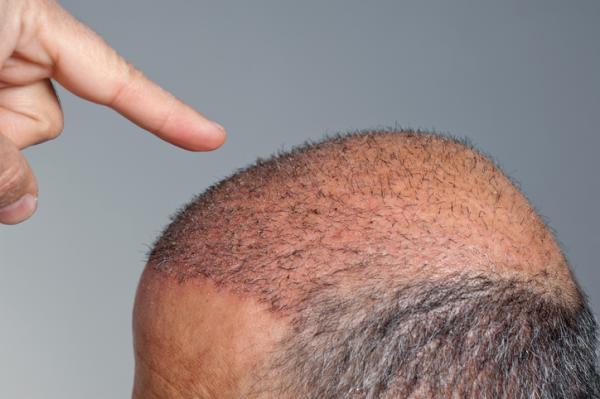 Alopecia nerviosa: qué es, síntomas y tratamiento - ¿El pelo crece después de la alopecia nerviosa?