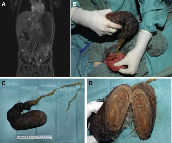 Síndrome de Rapunzel: sintomas, causas e tratamento - Diagnóstico da síndrome de Rapunzel